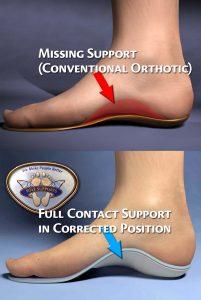Chiropractic Prescribed Orthotics Help Resolve Foot Issues