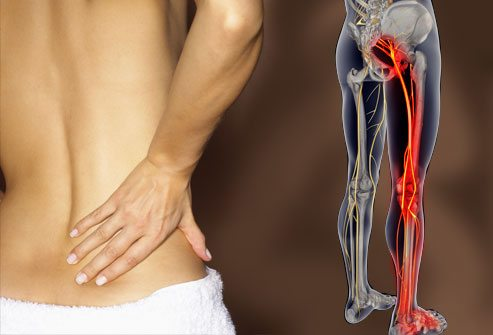 Slipped Disk Symptoms Include Tingling, Numbness and Chronic Pain