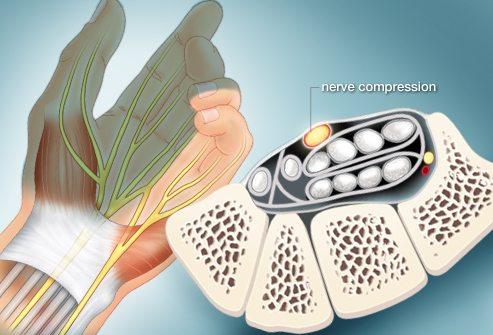 chiropractor-woodridge-il-herniated-disc-treatment