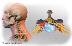 chronic pain management in the neck and shoulder